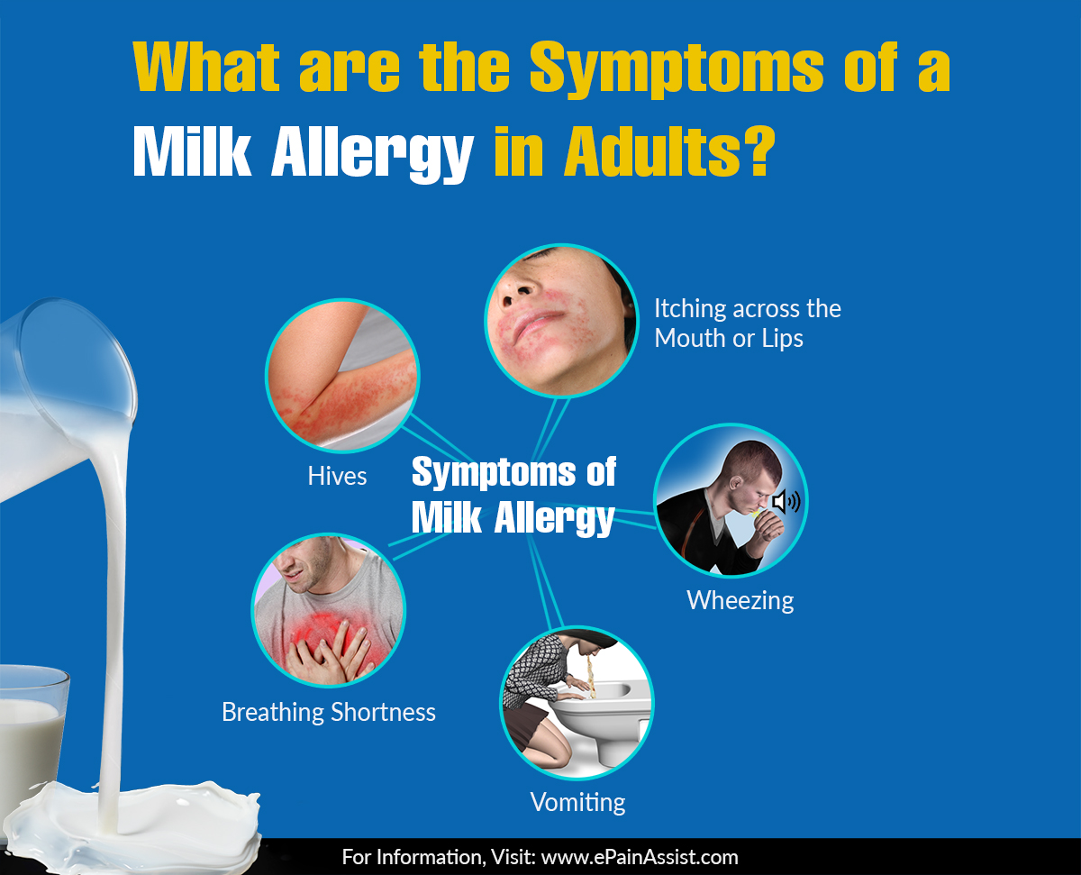 What Are The Symptoms Of A Milk Allergy In Adults?