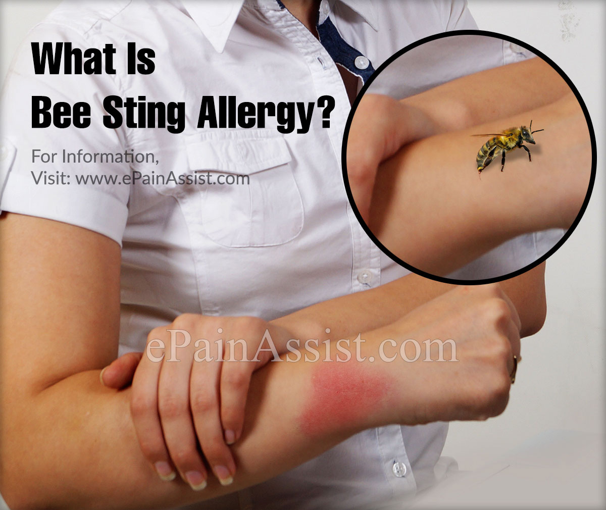 What is a Bee Sting Allergy & How is it Treated?