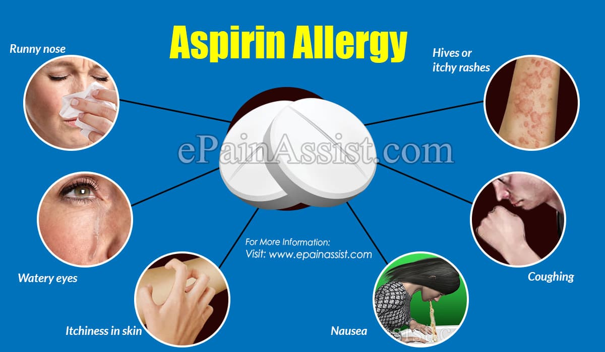 Aspirin Allergy: Symptoms & Management