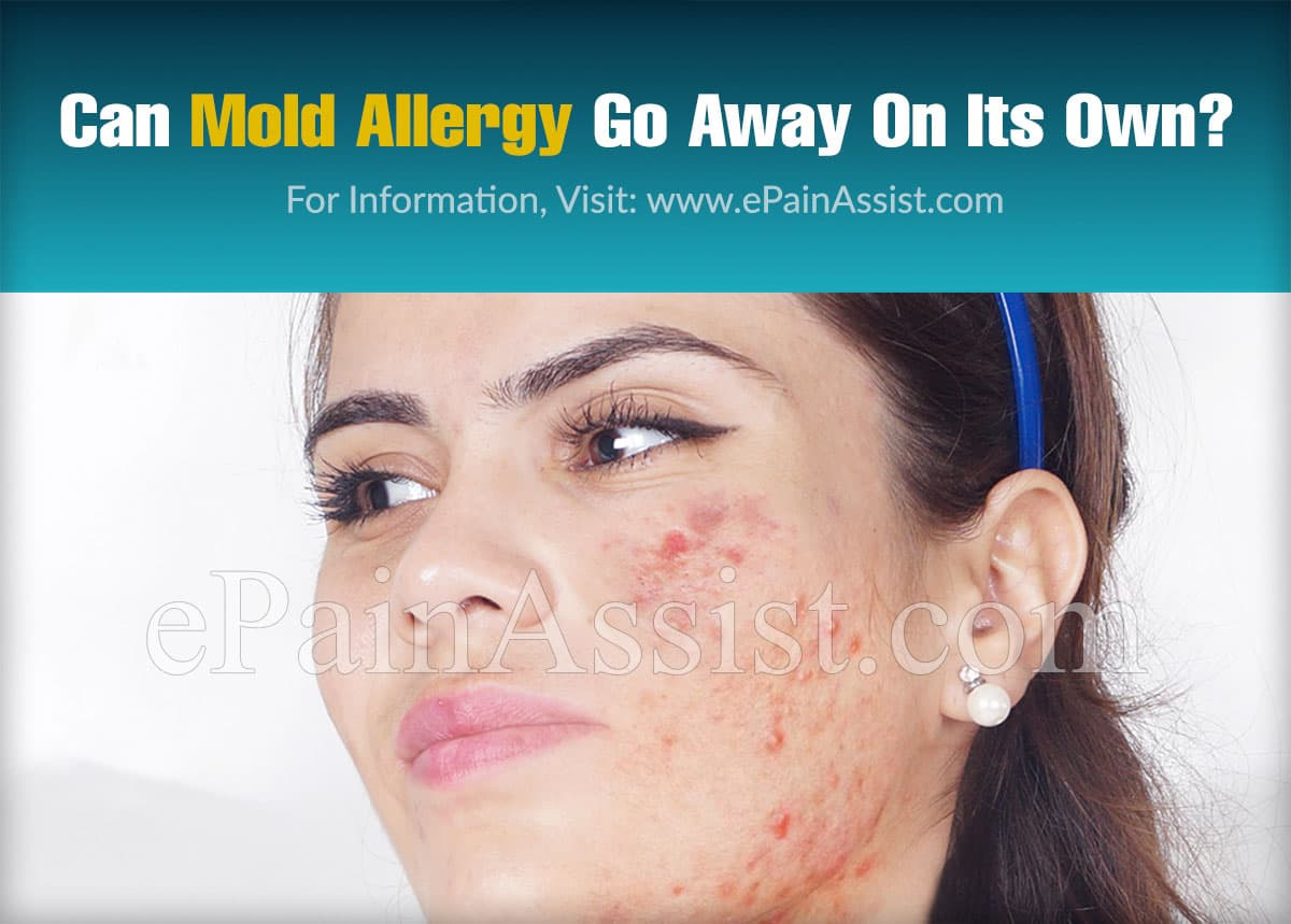 Can Mold Allergy Go Away On Its Own?