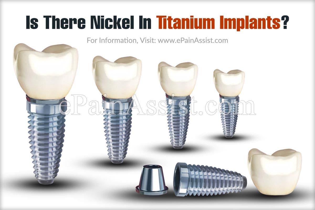 Is There Nickel In Titanium Implants?