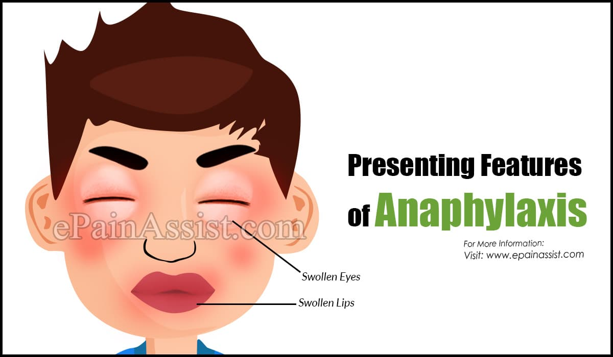 Presenting Features of Anaphylaxis