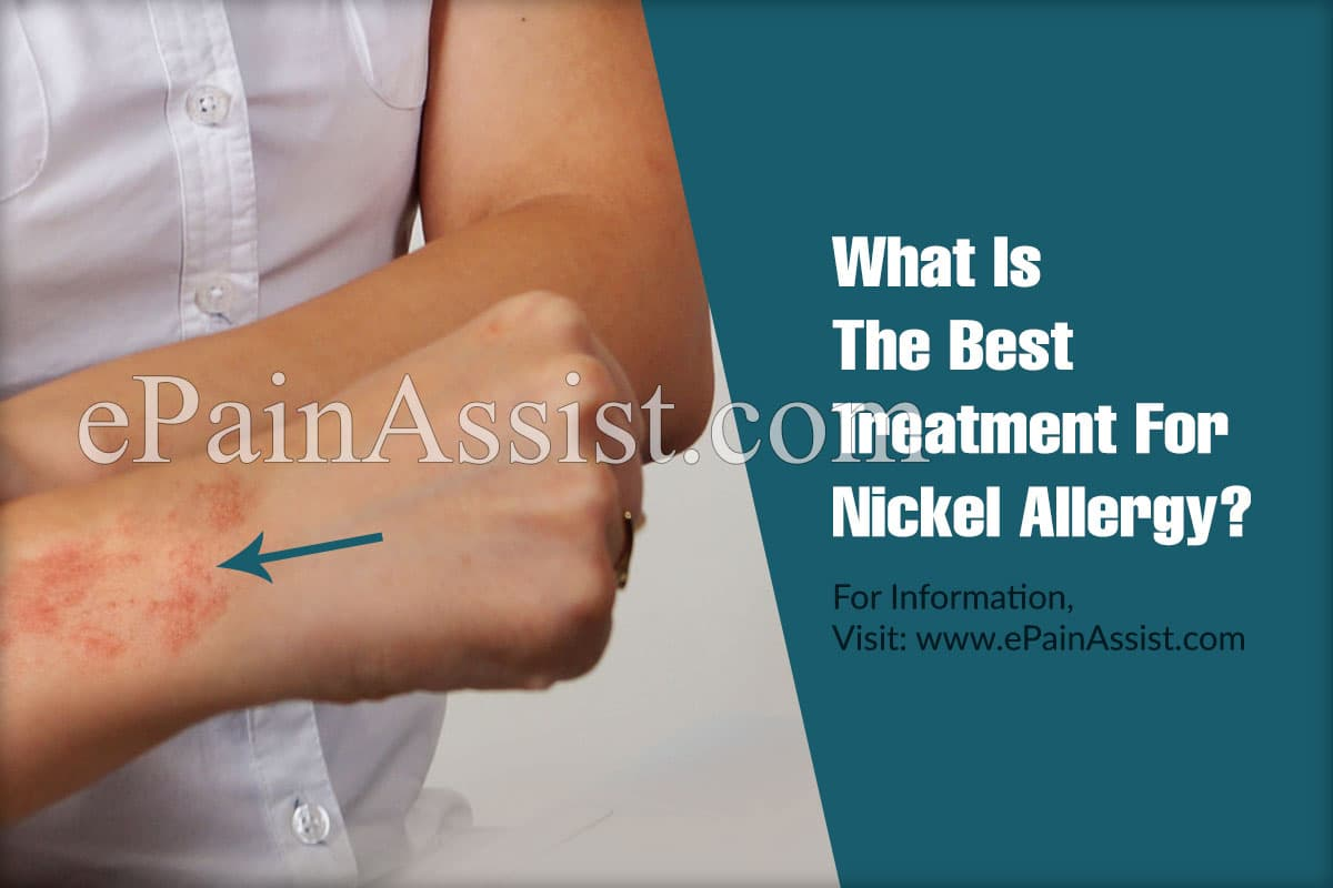 What Is The Best Treatment For Nickel Allergy?