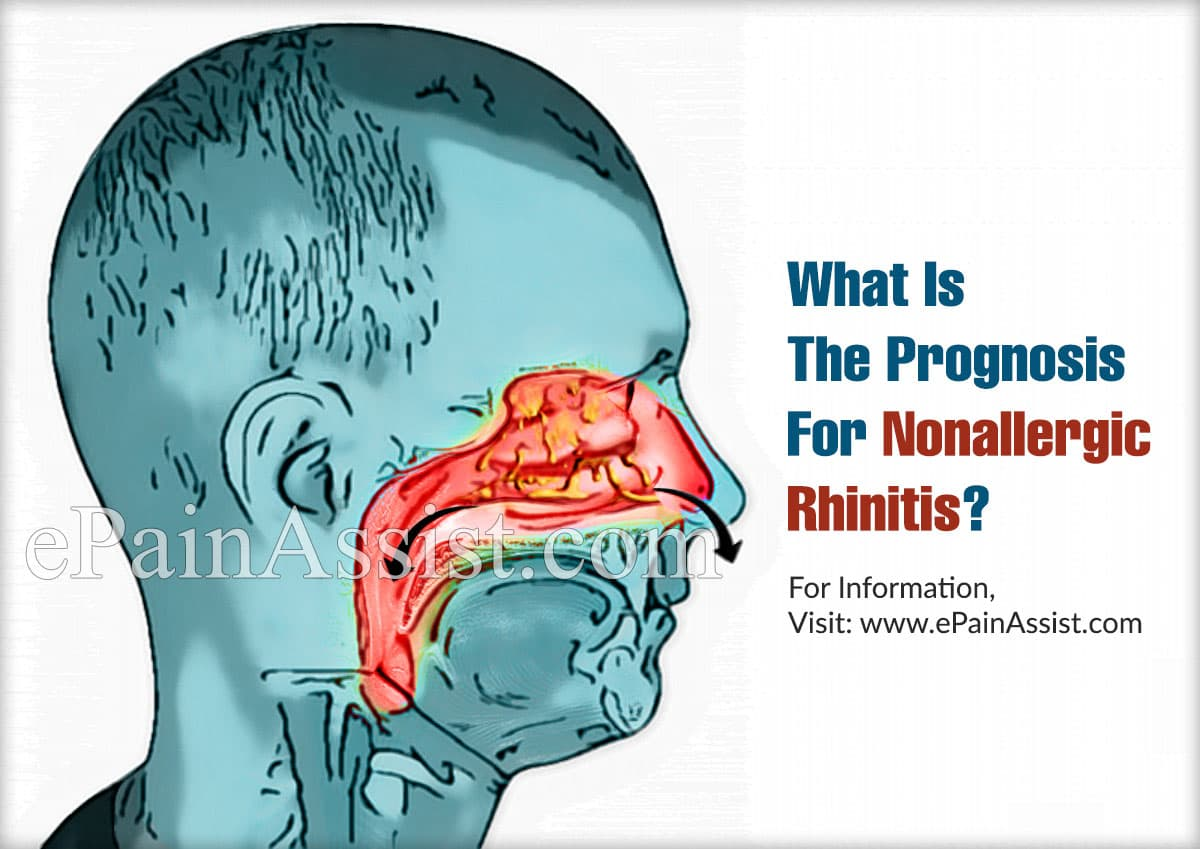 What Is The Prognosis For Nonallergic Rhinitis?