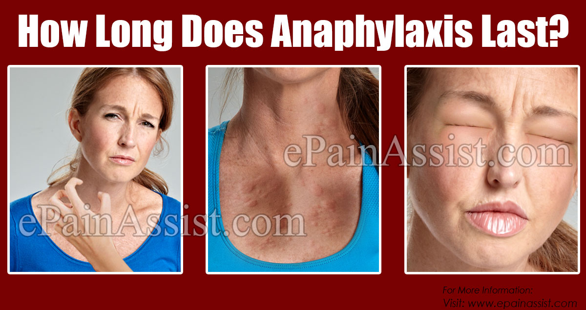How Long Does Anaphylaxis Last?