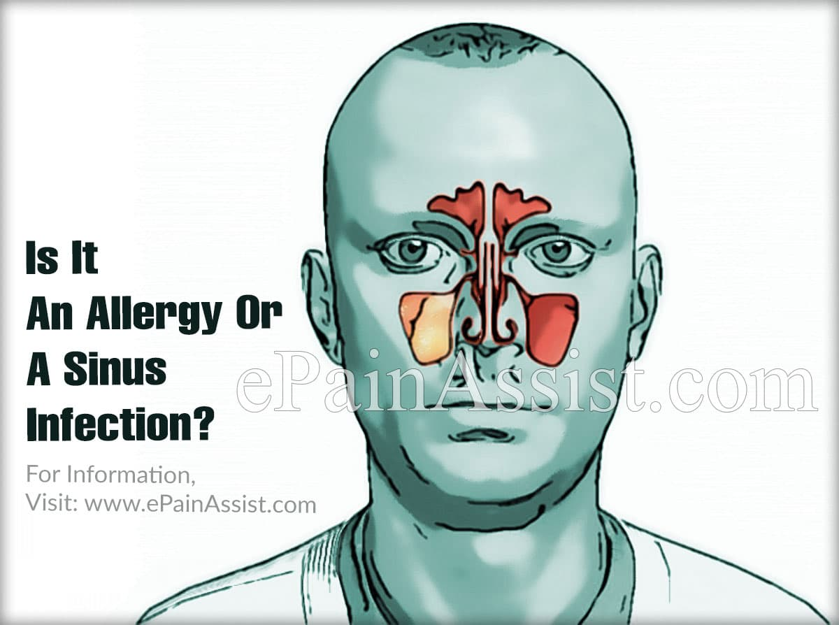 Is It An Allergy Or A Sinus Infection?