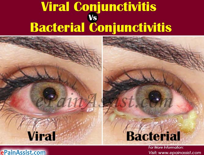 Viral Vs. Bacterial Conjunctivitis: Differences Based on Causes