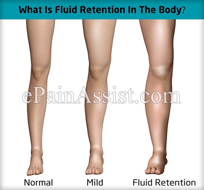What Is Fluid Retention In The Body?