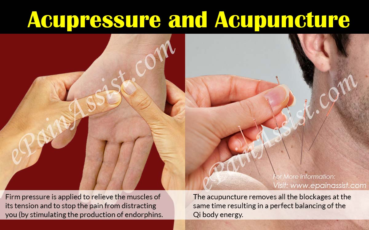 Acupressure and Acupuncture