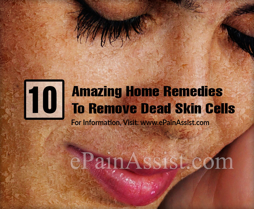 10 Amazing Home Remedies To Remove Dead Skin Cells
