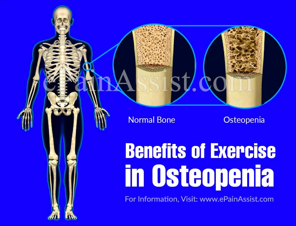 Benefits of Exercise in Osteopenia