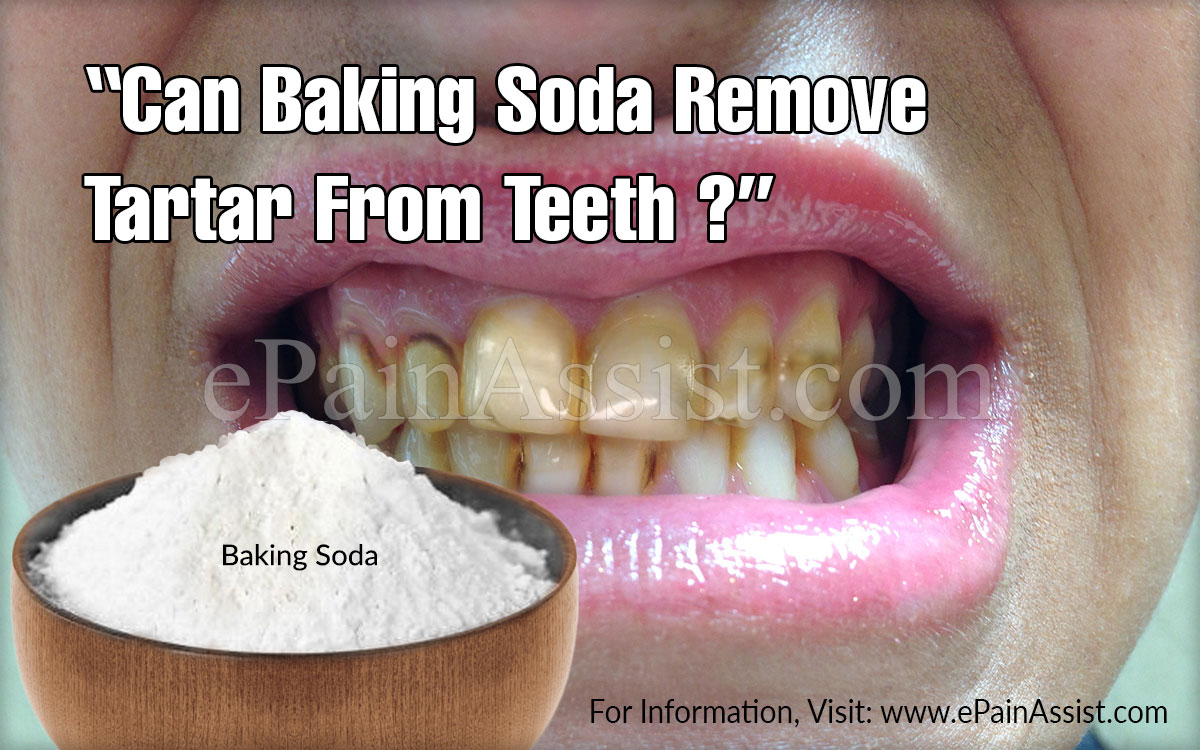 Can Baking Soda Remove Tartar From Teeth What Are The Home