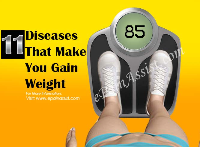11 Diseases That Make You Gain Weight