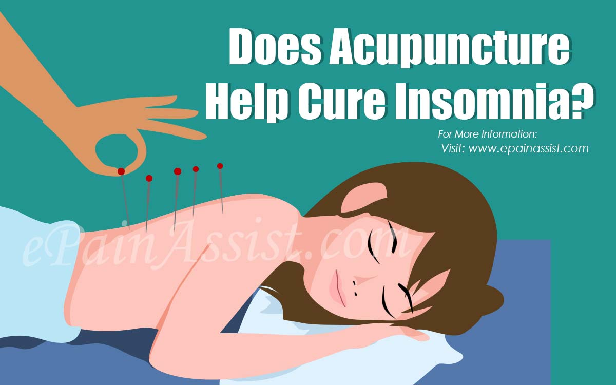 Does Acupuncture Help Cure Insomnia?