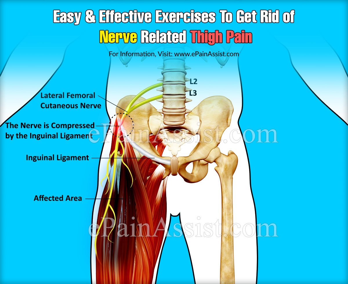 Easy & Effective Exercises To Get Rid of Nerve Related Thigh Pain