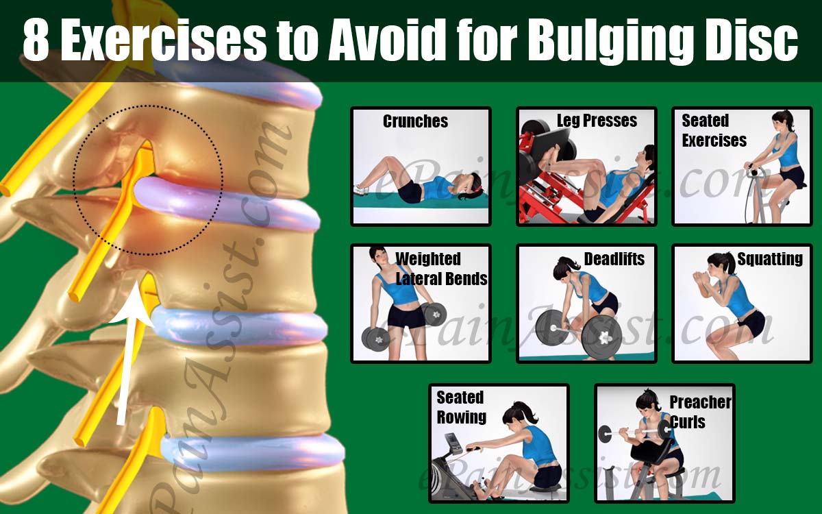 8 Exercises to Avoid for Bulging Disc