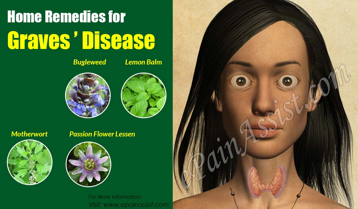 Home Remedies for Graves' Disease
