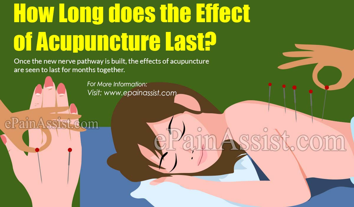 How Long does the Effect of Acupuncture Last?