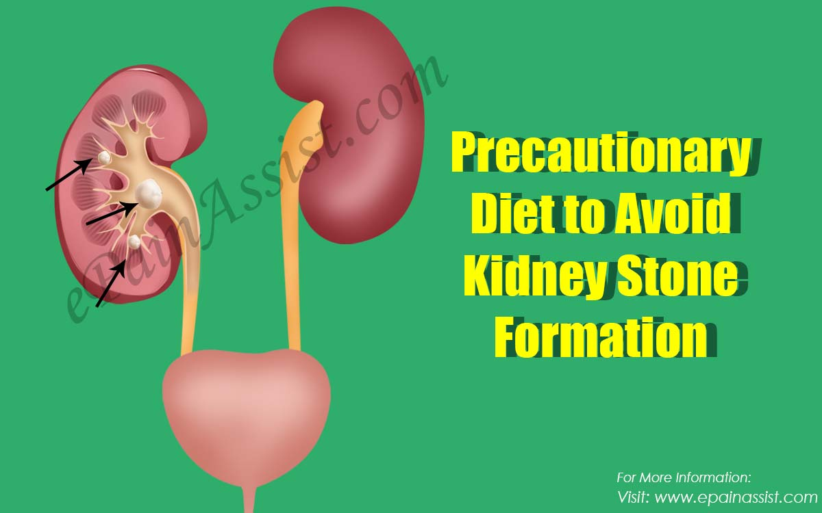 Precautionary Diet to Avoid Kidney Stone Formation