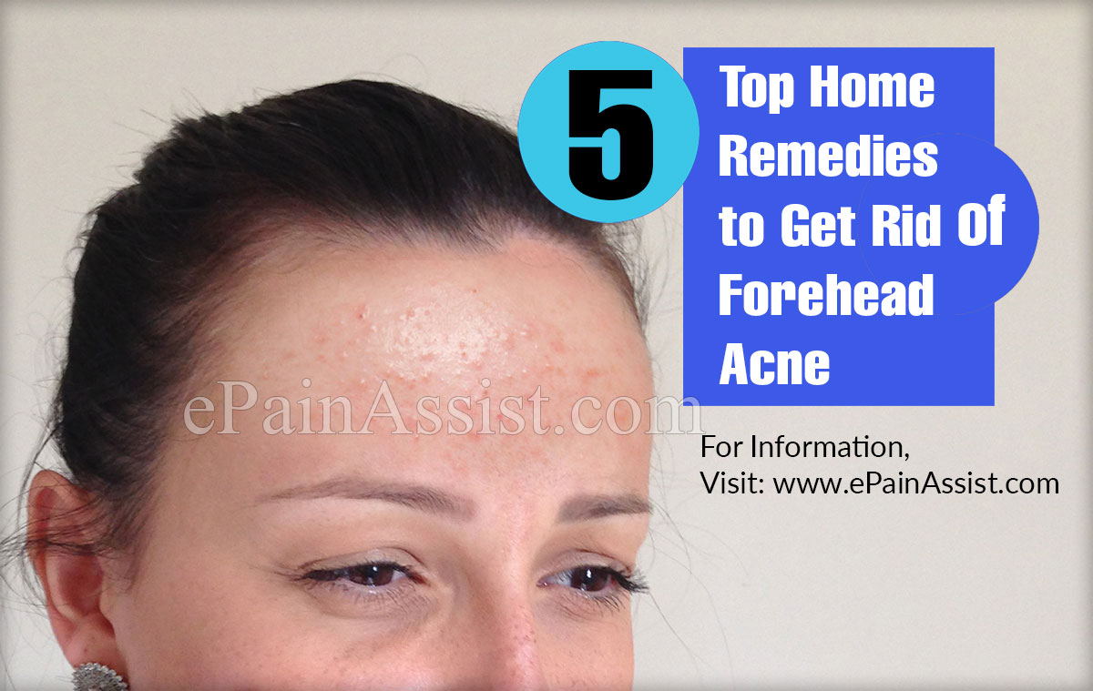 5 Top Home Remedies to Get Rid of Forehead Acne