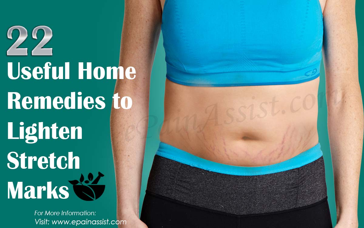 22 Useful Home Remedies to Lighten Stretch Marks
