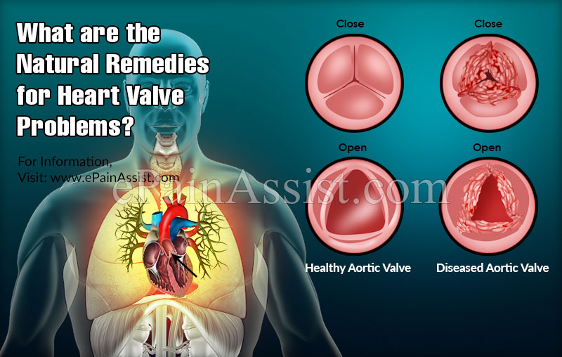 Natural Remedies For Heart Valve Problems