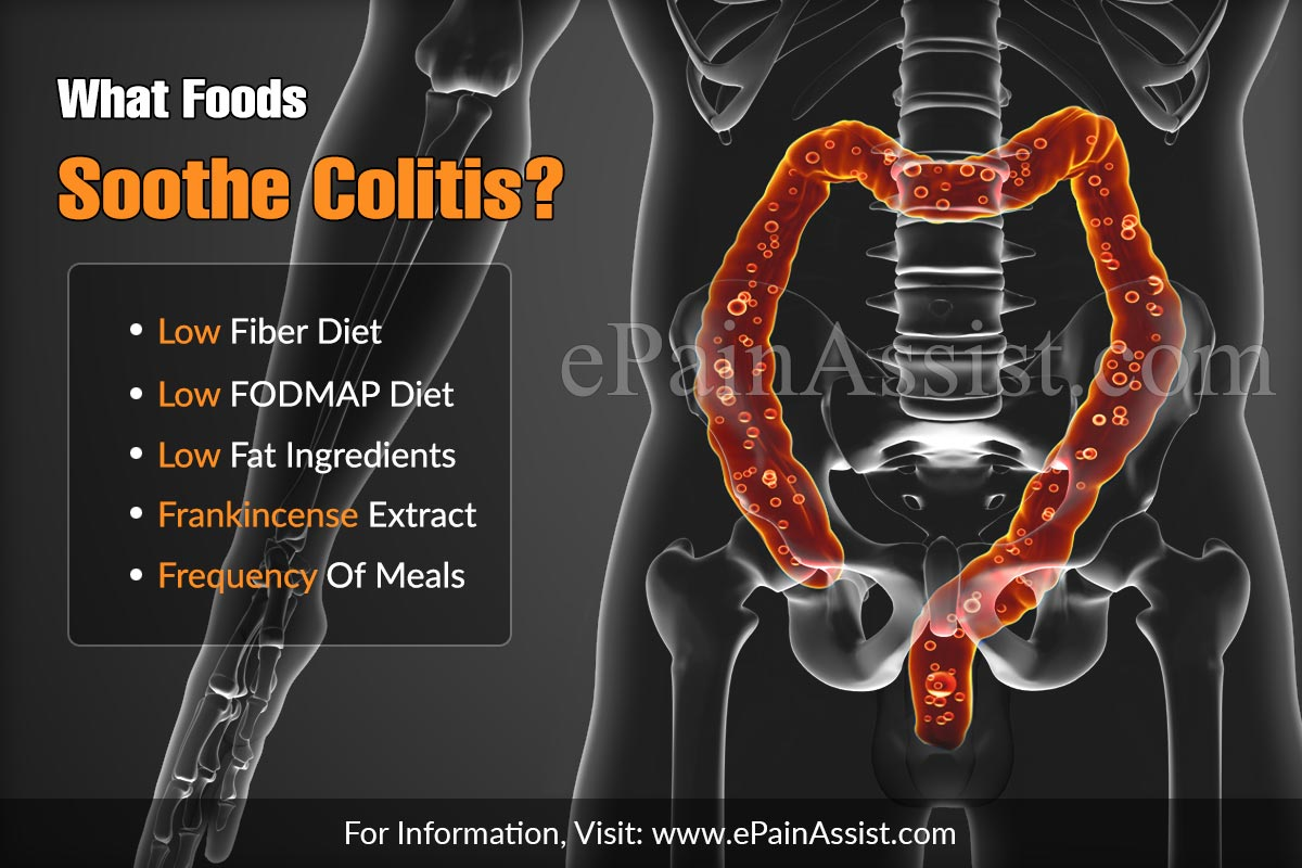 What Foods Soothe Colitis?