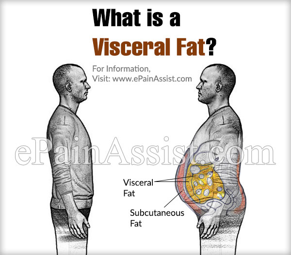 What is a Visceral Fat?