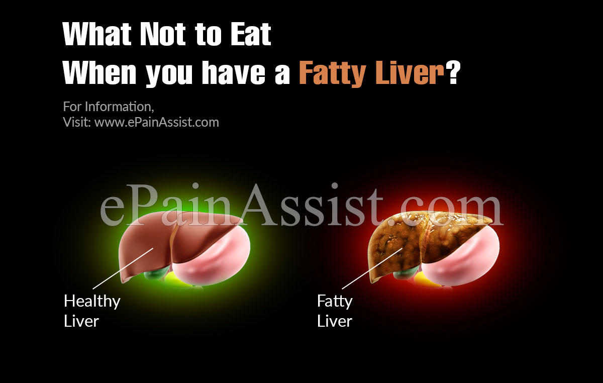 What Not to Eat when you have a Fatty Liver?