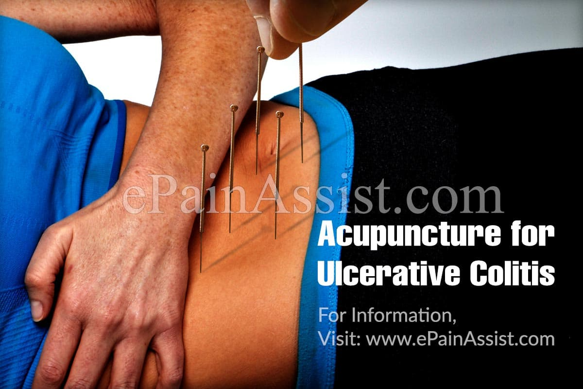 Acupuncture for Ulcerative Colitis: Can it Help?