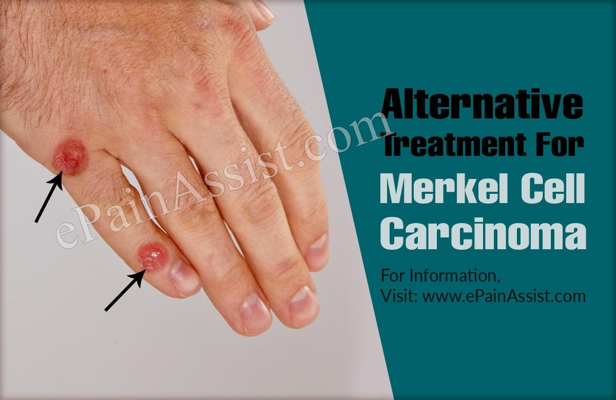 Alternative Treatment For Merkel Cell Carcinoma