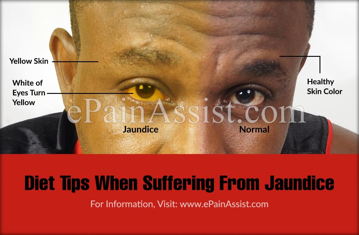 Diet Tips For A Person Suffering From Jaundice
