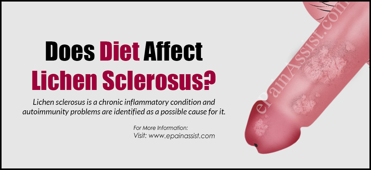 Does Diet Affect Lichen Sclerosus?