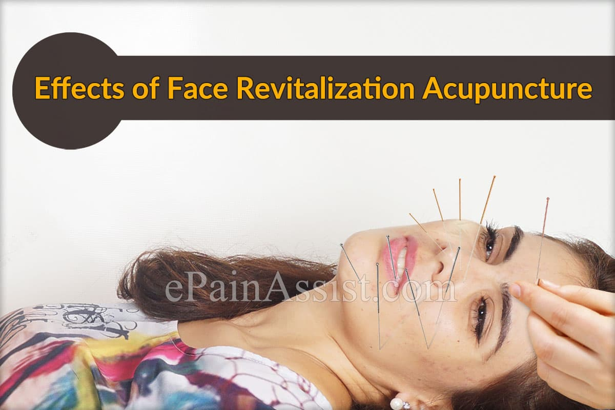 Effects of Face Revitalization Acupuncture