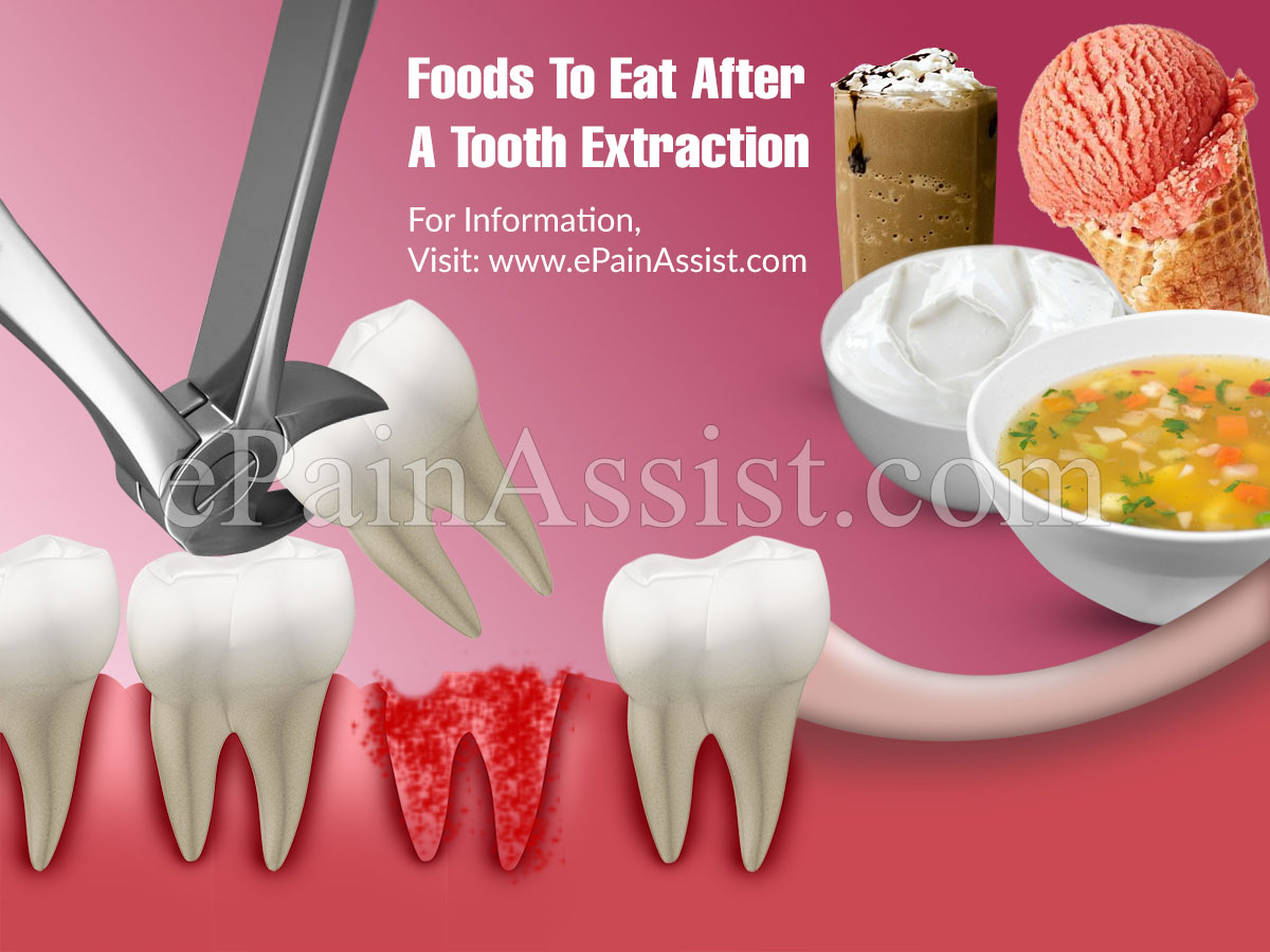 Foods To Eat After A Tooth Extraction