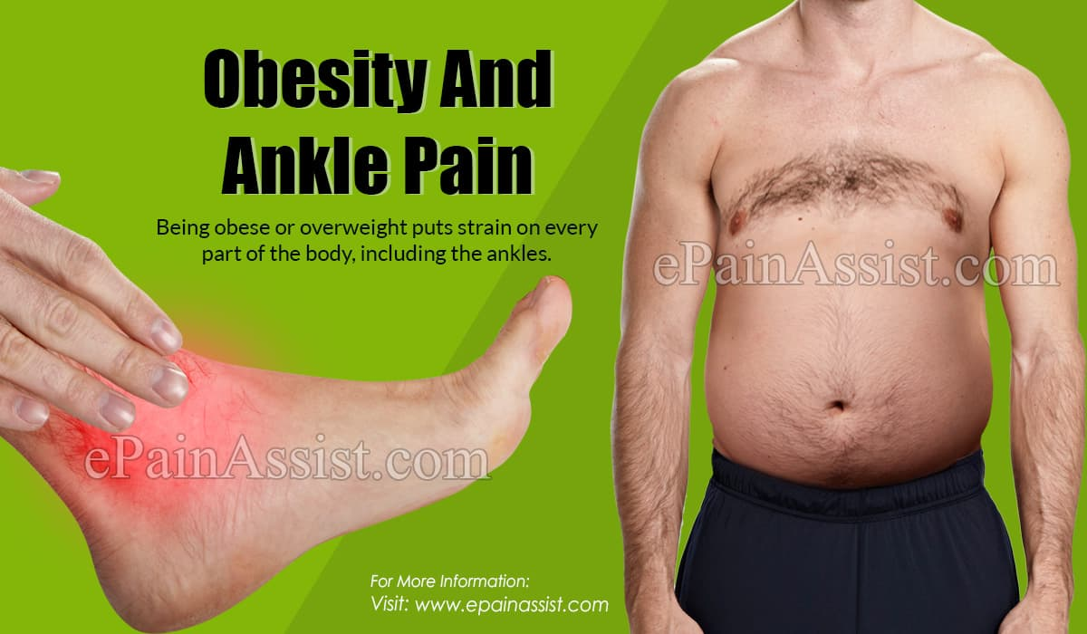 Obesity And Ankle Pain