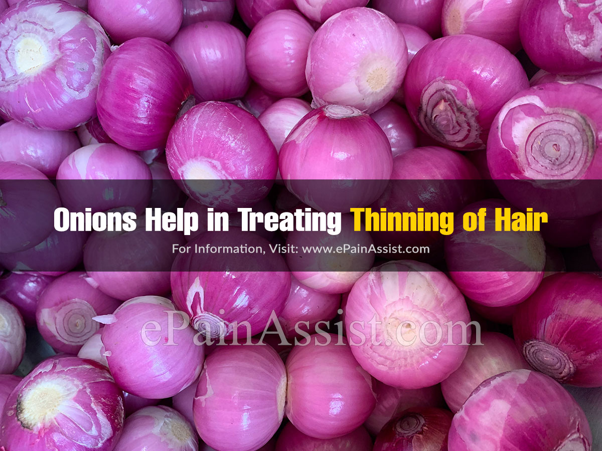 Onions Help in Treating Thinning of Hair