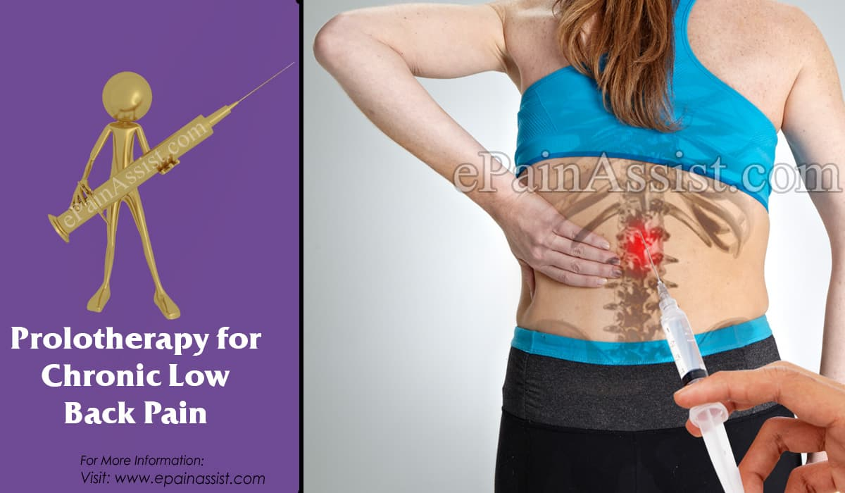 Prolotherapy for Chronic Low Back Pain