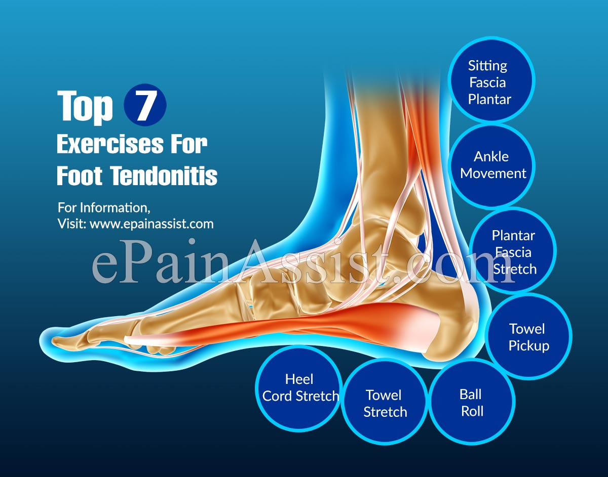 Top 7 Exercises For Foot Tendonitis