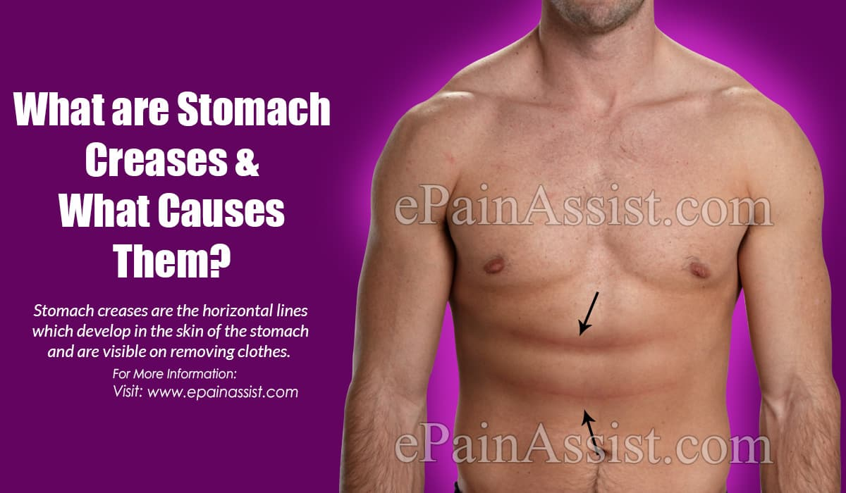 What are Stomach Creases ?