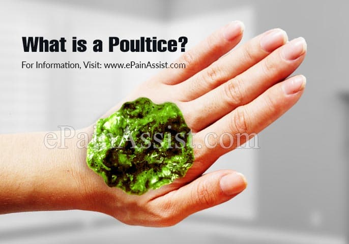 What is a Poultice?