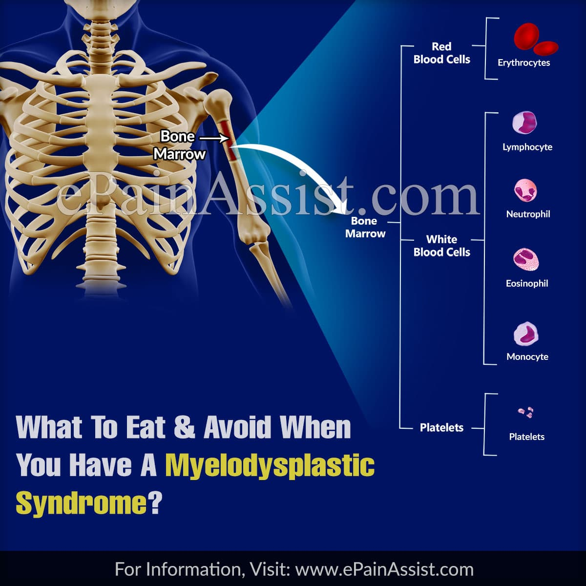 What To Eat & Avoid When You Have A Myelodysplastic Syndrome?