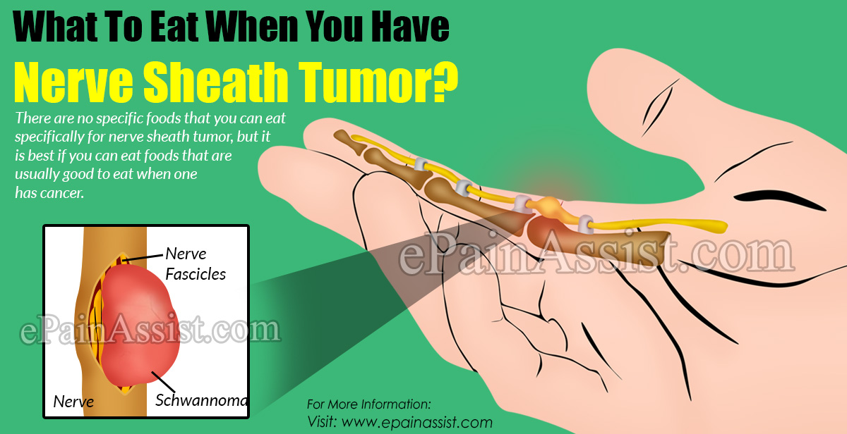 What To Eat When You Have Nerve Sheath Tumor?