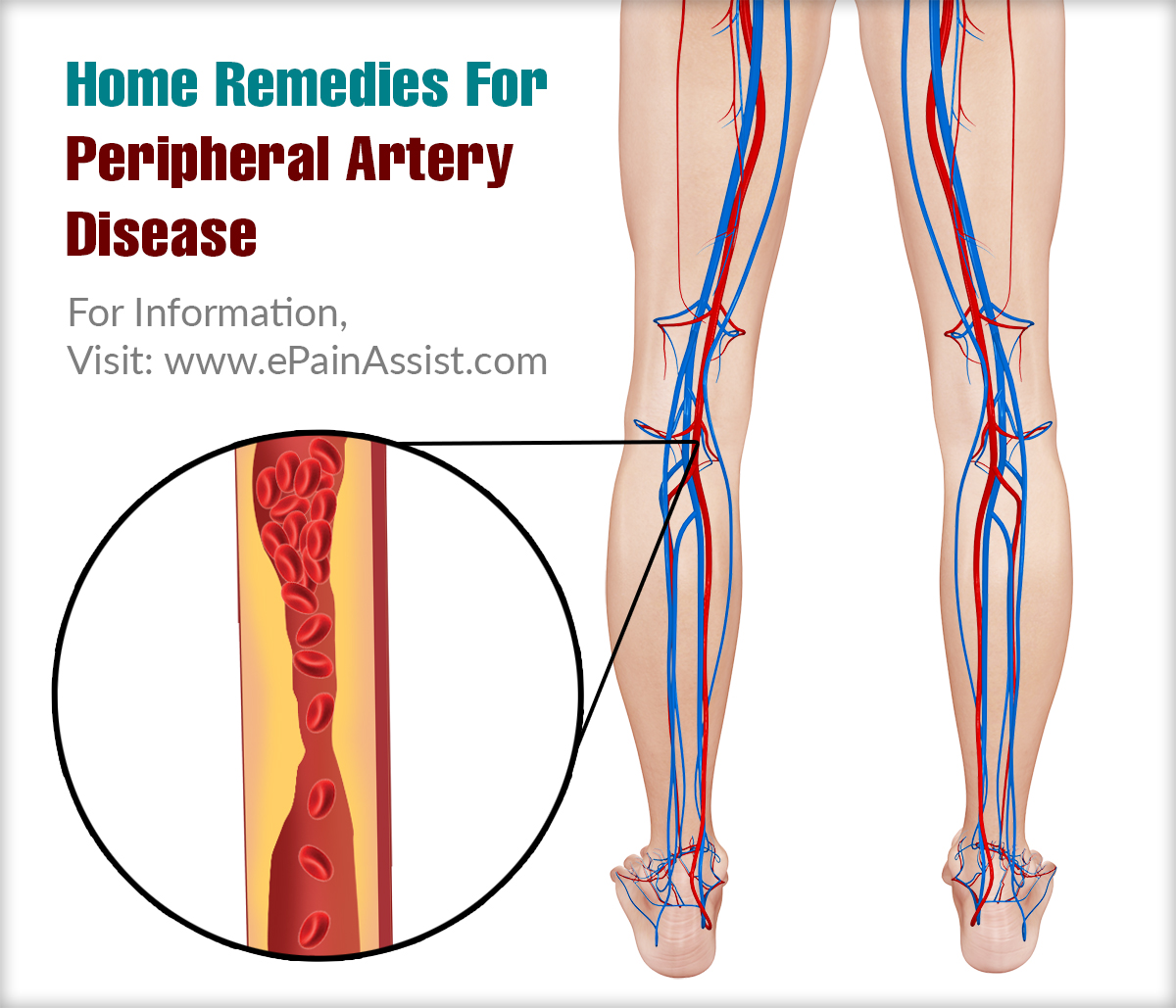 Home Remedies For Peripheral Artery Disease
