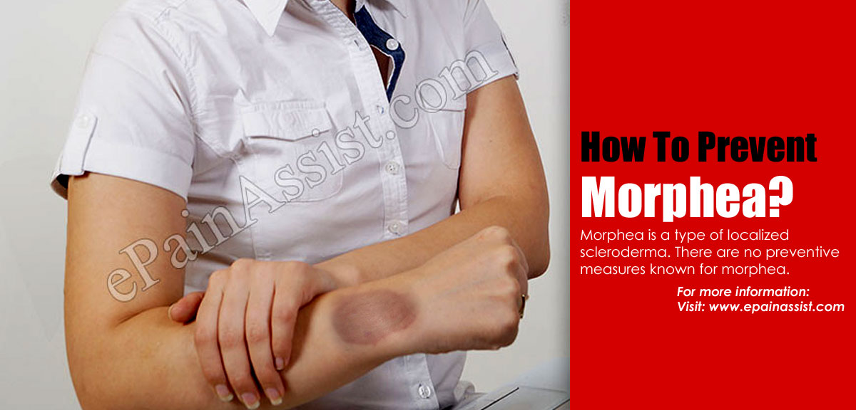 How To Prevent Morphea?