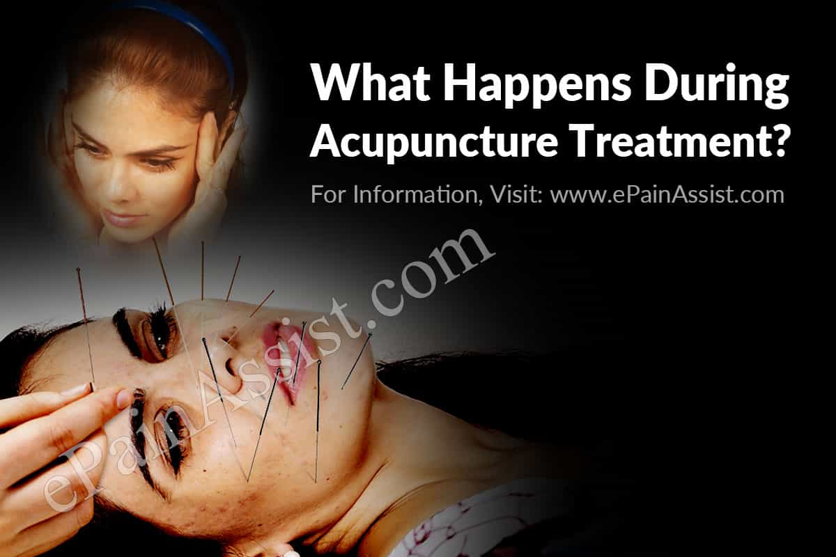 What Happens During Acupuncture Treatment?