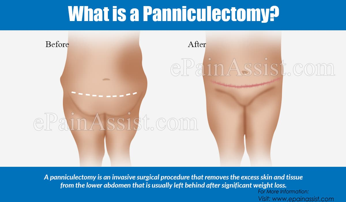 What is a Panniculectomy?