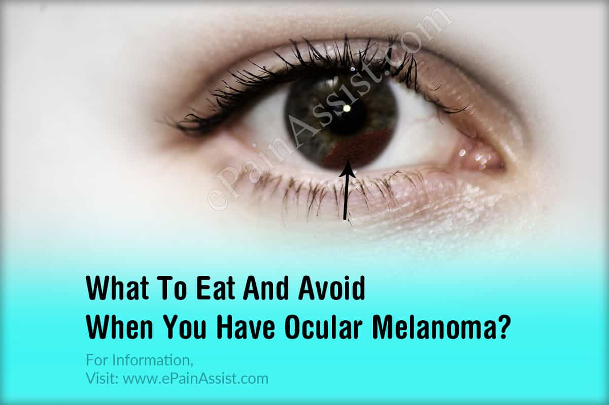 What To Eat And Avoid When You Have Ocular Melanoma?