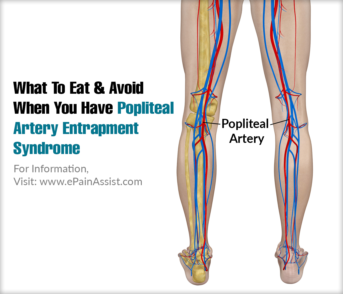 What To Eat & Avoid When You Have Popliteal Artery Entrapment Syndrome?