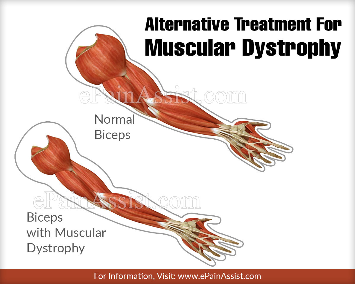 Alternative Treatment For Muscular Dystrophy